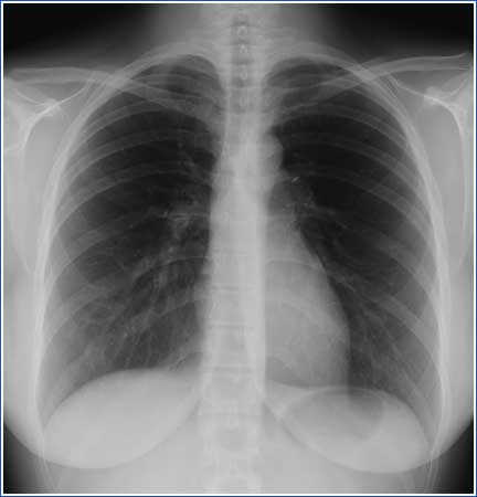 radiographie-thorax-g